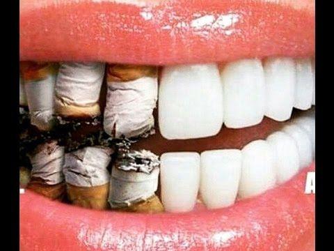 電子煙 口腔健康