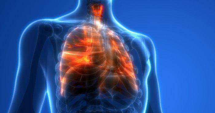 lung-injury-CDC 電子煙